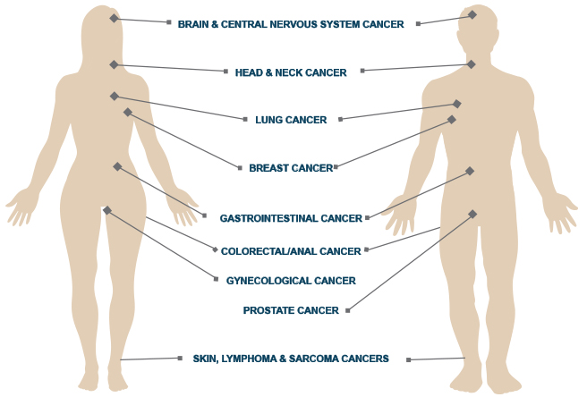 Cancer Radiation